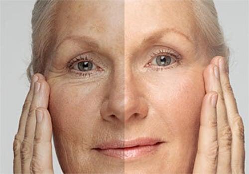 """Quantos anos a sua pele tem? Aprenda a """"rejuvenescê-la"""""""