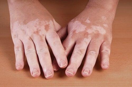 Remédios naturais que pessoas com vitiligo podem experimentar