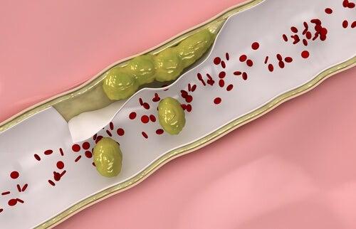 3 infusões medicinais para fortalecer e limpar veias e artérias