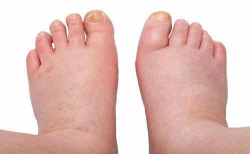 Remédios caseiros para tratar os pés e tornozelos inchados