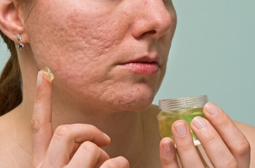 6 remédios caseiros para eliminar as espinhas