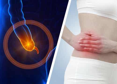 7 sintomas da apendicite que você precisa conhecer