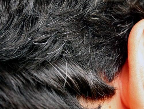 6 remédios caseiros para combater a aparição precoce dos cabelos brancos