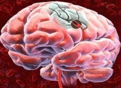 Sinais para detectarum derrame cerebral e como preveni-lo