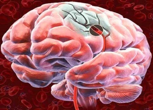 Descubra 5 formas de favorecer o fluxo sanguíneo cerebral