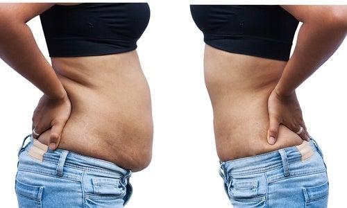 acumular gordura
