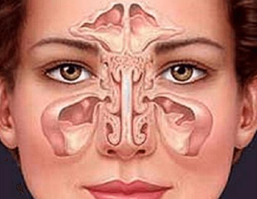 Como tratar a sinusite de forma natural?