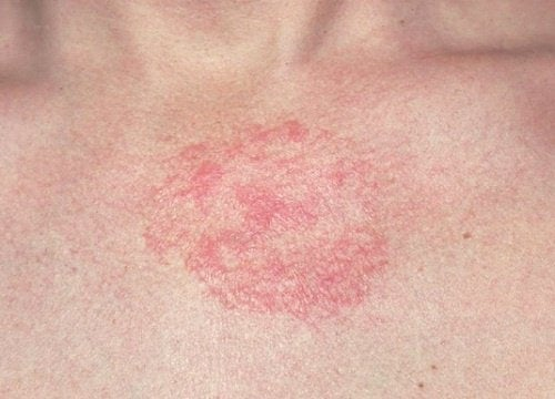 5 remédios caseiros para as dermatites