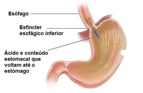 refluxo gástrico