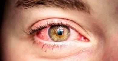 Vermelhidão-nos-olhos-390x203