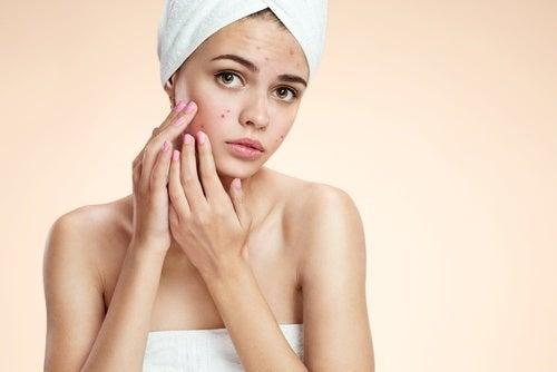 Azeite de oliva para combater a acne
