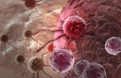 células do câncer na tireoide