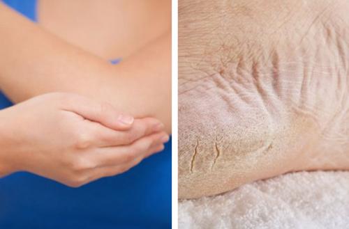 Recupere os pés e cotovelos ressecados