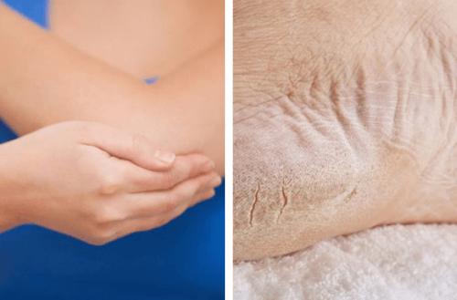 Recupere a saúde dos pés e cotovelos ressecados em uma semana