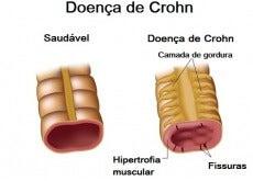 Doença de Crohn: dieta adequada no dia a dia