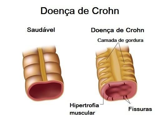 Imagem da doença de Crohn