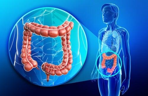 Tratamento para Doença de Crohn