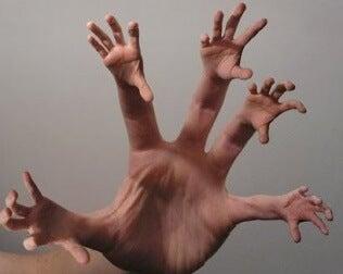 Síndrome da mão estranha transtornos psicológicos