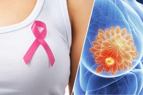 10 sinais que podem indicar um câncer de mama