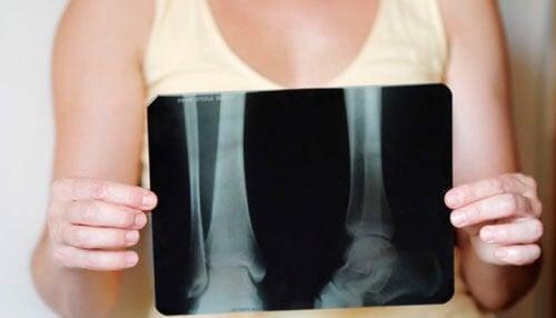 Como manter a densidade óssea ao chegar na menopausa