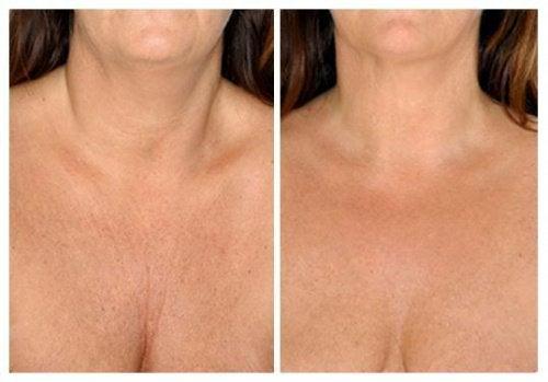 Os melhores tratamentos naturais para cuidar da pele do pescoço