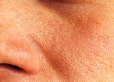 Remédios naturais e caseiros para os poros abertos
