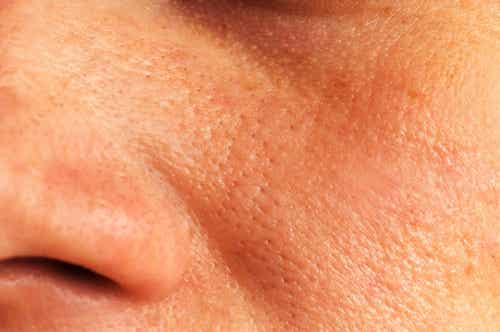 5 soluções naturais para reduzir os poros dilatados da pele