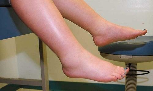 Tenho retenção de líquidos nas pernas. O que posso fazer?