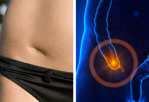 Aprenda a detectar a tempo os sinais de uma apendicite