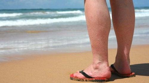Conselhos para reduzir o incômodo das varizes no verão