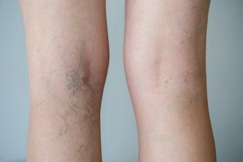 Alimentos que favorecem a circulação sanguínea nas pernas: Descubra-os!