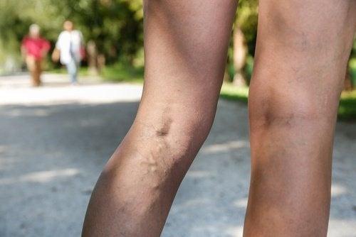 Mulher que não consegue eliminar as varizes nas pernas