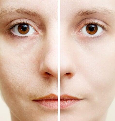 5 ingredientes naturais que ajudam a eliminar as manchas escuras