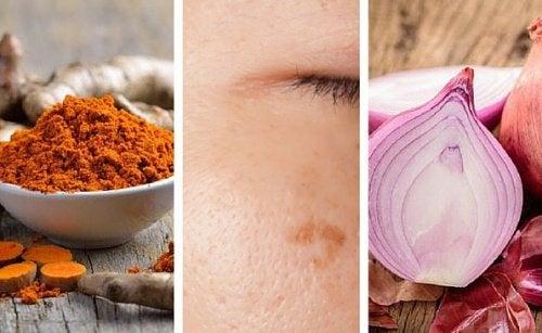 Você tem manchas na pele? Estes 6 remédios caseiros ajudarão a reduzi-las