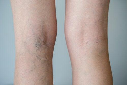 o que ajuda a dor nas pernas devido à má circulação