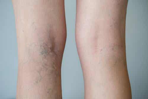 Alimentos que favorecem a circulação sanguínea nas pernas