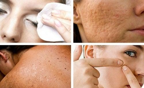 Hábitos que prejudicam a saúde de sua pele