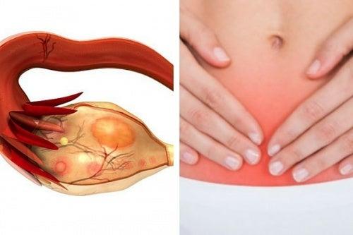 Câncer de ovário: 7 sinais deste assassino silencioso