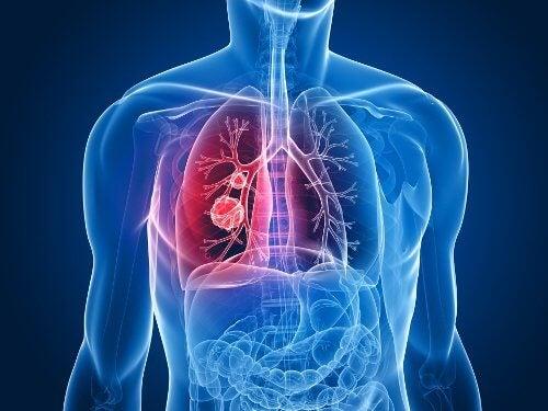 Cancer-de-pulmão
