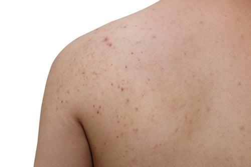 acne-ombros