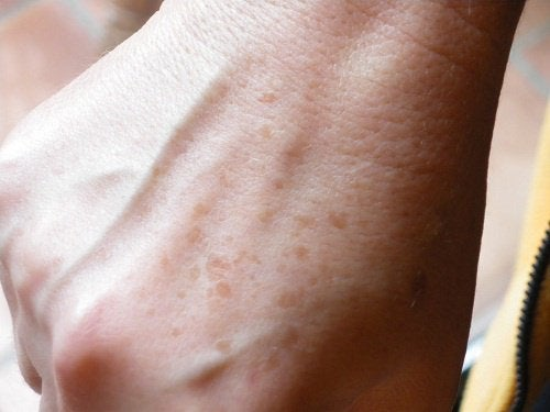 Como fazer cremes caseiros para manchas nas mãos