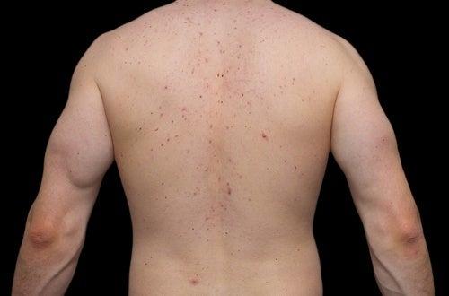 acne-nas-costas