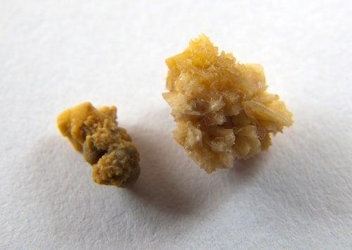 Existem alimentos que podem causar pedras nos rins?