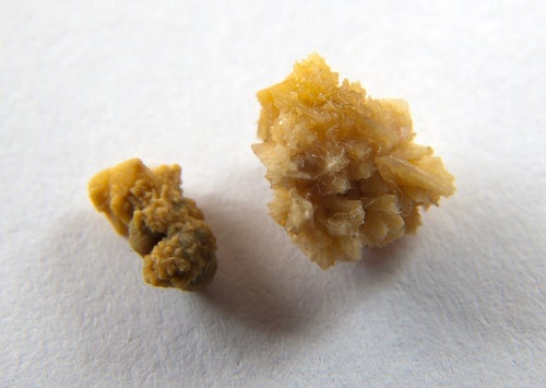 Existem alimentos que podem causar pedra nos rins?