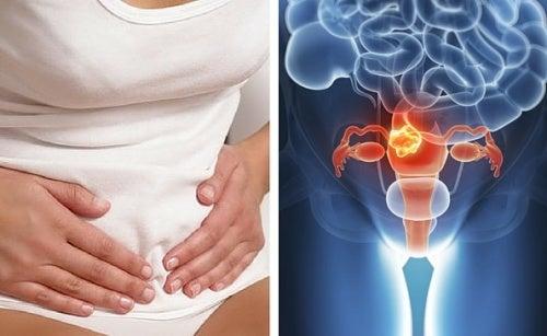 Câncer de colo do útero: tudo o que precisamos saber