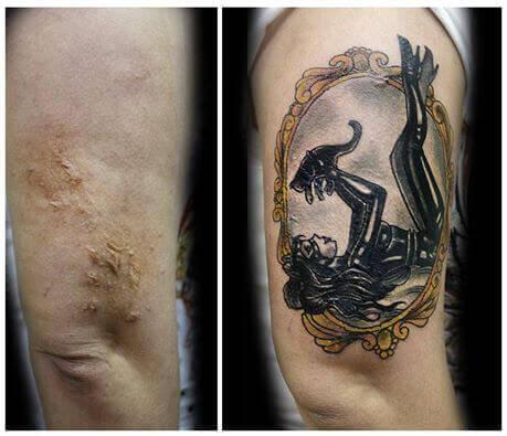tatuagens_vitimas_de_violencia_queimadura