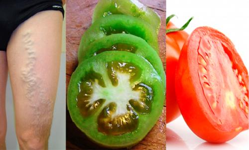 Tomates para reduzir a dor causada pelas varizes