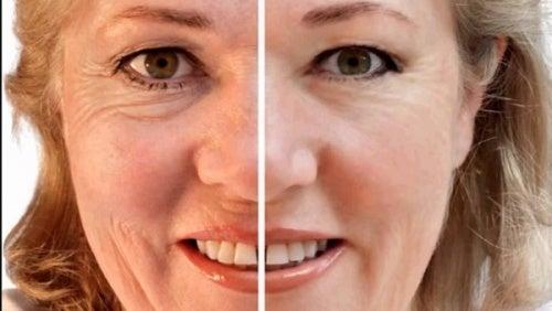 Máscaras naturais para atenuar as rugas