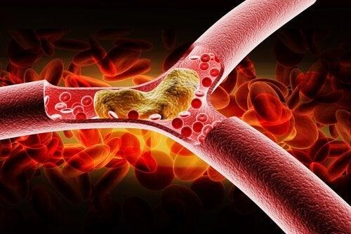Colesterol-na-arteria
