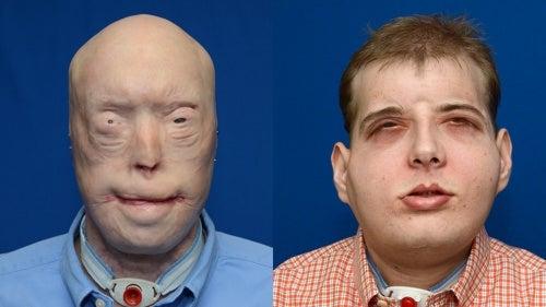 Um bombeiro de 41 anos recebe o transplante facial mais completo da história